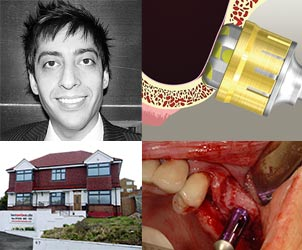 Sinus Course With Dr Shushil Dattani – Manchester