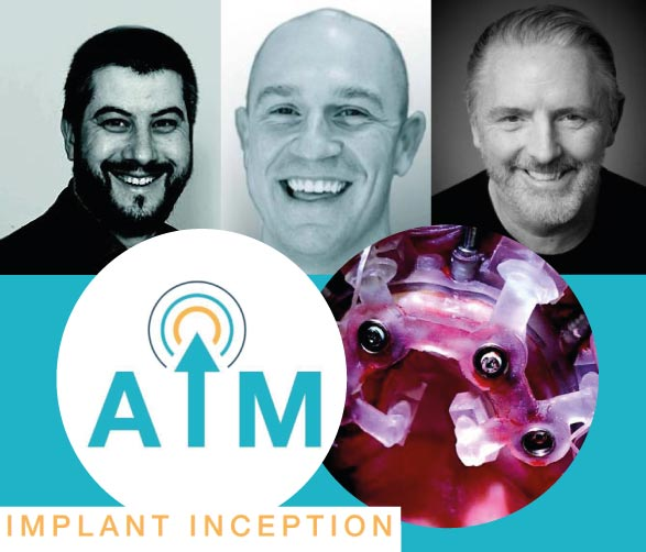 Implant Inception  – Harrogate 29 Jan 2021