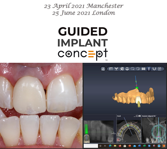 Guided Implant Concept – London