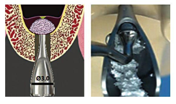 CAS KIT Bone Condenser Image
