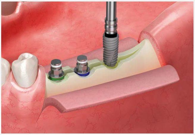 Esset KIT Implants Without Applying Over-Torque