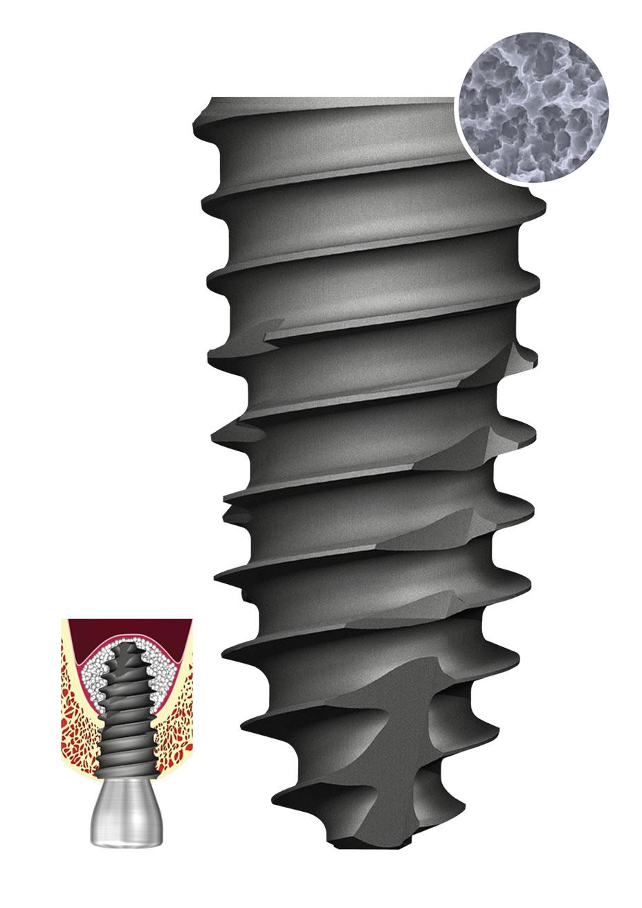 TSIV SA Implant
