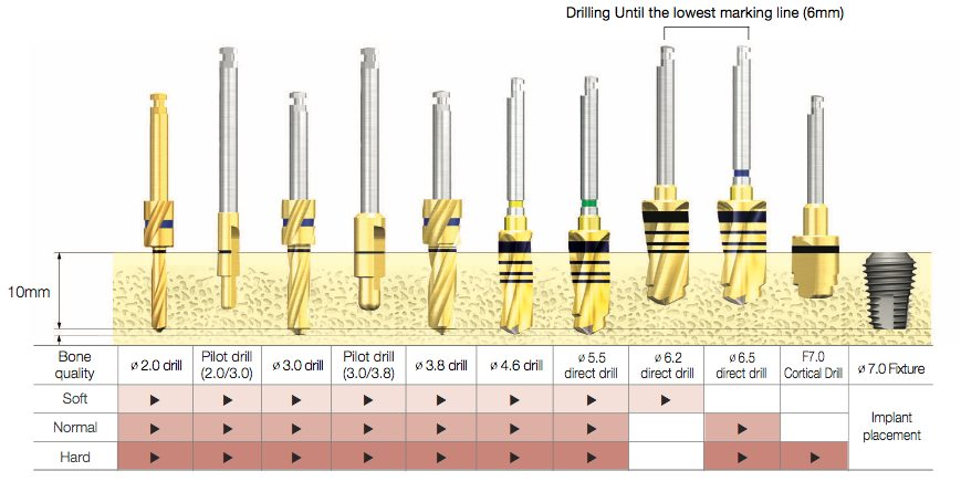 Drill Sequence for TSIII Ultra-Wide Fixture 02
