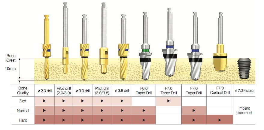 Drill Sequence for TSIII Ultra-Wide Fixture 04