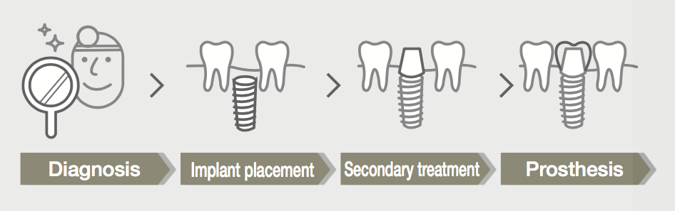 Implant treatment procedure