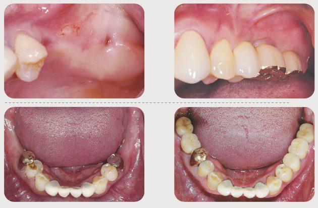 Missing several teeth
